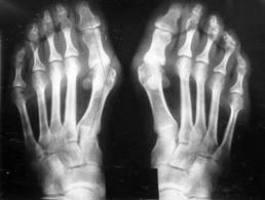 артроз суставов пальцев ног лечение