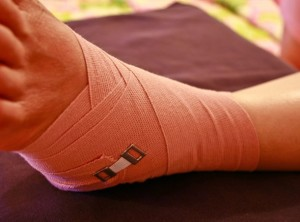 растяжение связок голеностопного сустава лечение