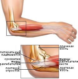 Форум эпикондилит локтевого сустава лечение какие ванночки делать, если болят суставы рук