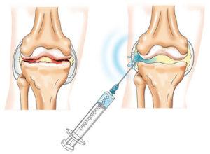 артроз коленного сустава лечение препараты