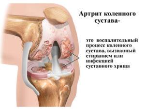 артрит коленного сустава лечение
