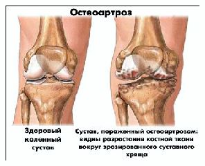 остеоартроз коленного сустава лечение