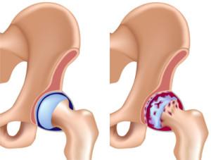 коксартроз тазобедренного сустава лечение