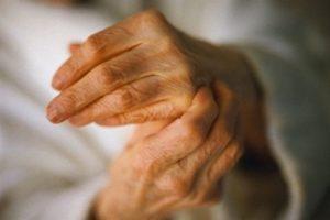 артроз пальцев рук лечение