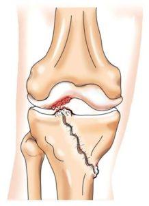 Посттравматический артроз воленного сустава постравматический артрозо артрит межфаланговых суставов левой стопы