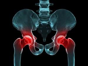 Артрит тазобедренного сустава: лечение, причины, симптомы