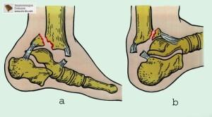 перелом голеностопного сустава