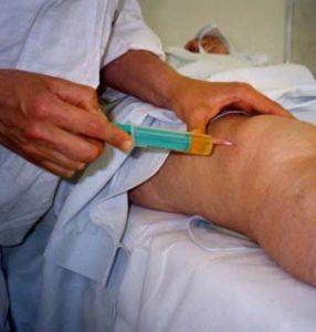 гемартроз коленного сустава последствия