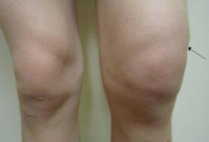 гемартроз коленного сустава лечение