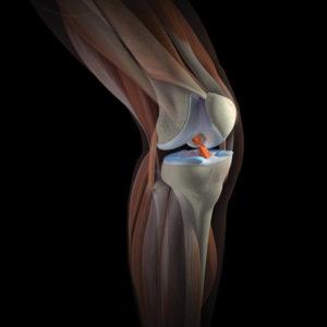 ревматоидный артрит коленного сустава