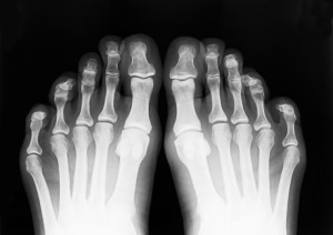полиартрит суставов ног