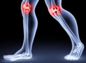 деформирующий артрит коленного сустава