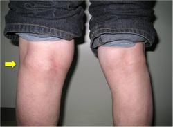 киста на коленном суставе фото