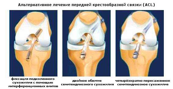 Боли после операции пкс