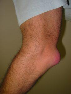 как лечить бурсит локтевого сустава