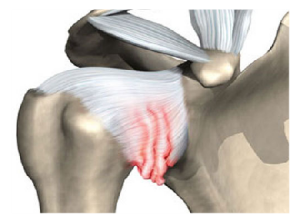 периартрит плечевого сустава