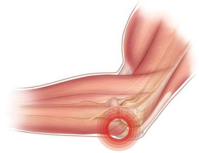 Что делать, если появилась боль в локтевом суставе? Лечение и ...