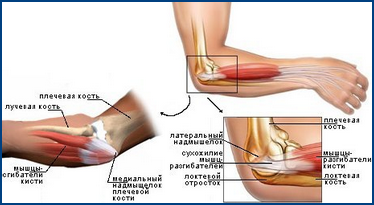 Отчего болит рука в локтевом суставе отсутствуют ядра в тазобедренных суставах