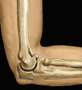 растяжение связок локтевого сустава лечение