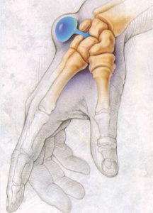 гигрома лучезапястного сустава лечение