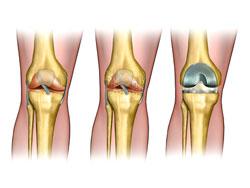 Осложненияпосле эндопротезирования коленного сустава мышечно-суставная дисфункция