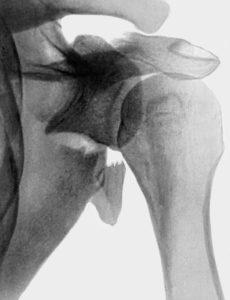 перелом плечевого сустава реабилитация