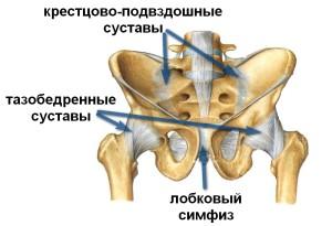 транзиторный синовит тазобедренного сустава