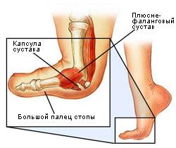бурсит большого пальца стопы лечение
