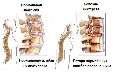 болезнь Бехтерева причины симптомы лечение у мужчин женщин препараты