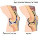 артроз локтевого сустава симптомы и лечение