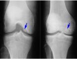 болезнь кенига коленного сустава