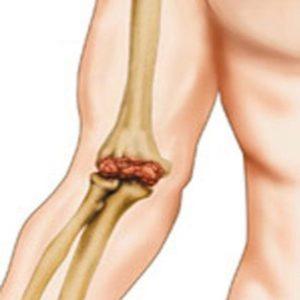 Боли в локтевом суставе левой руки ночью ortex 08 где купить для плечевого сустава