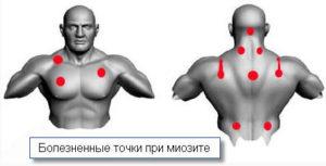миозит грудной мышцы