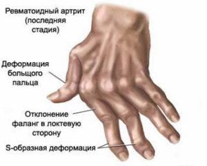 ревматоидный артрит фото руки