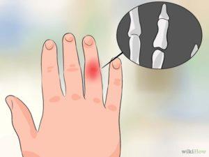 растяжение связок пальца лечение