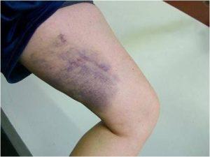 Растяжение сухожилий тазобедренного сустава лечение книга секреты здоровья суставов и позвоночника