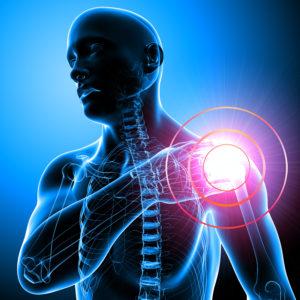 боль в левом плечевом суставе причины