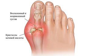 артрит сустава пальца ноги
