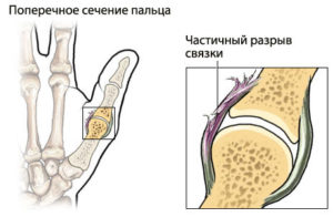 растяжение связок пальца