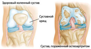 Артрозо артрит коленного сустава народное лечение