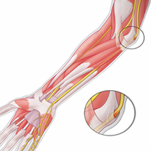 Чем лечить растяжение локтевых суставов суставы алмаг