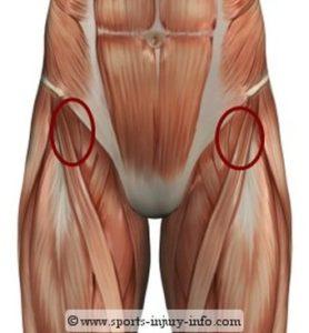 растяжение тазобедренного сустава лечение
