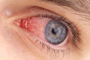 реактивный артрит симптомы и лечение