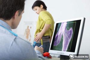 вертельный бурсит тазобедренного сустава