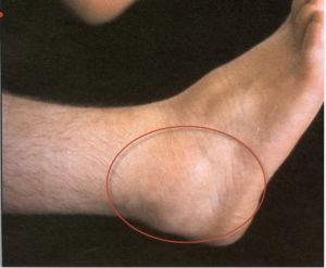 бурсит голеностопного сустава фото