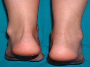Лечение острого артрита голеностопного сустава паразиты живущие в позвоночнике и суставах