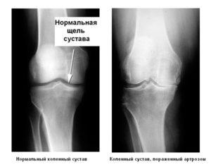 деформирующий артроз коленного сустава фото