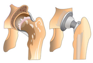 артрит тазобедренного сустава симптомы