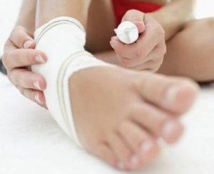 растяжение связок народное лечение