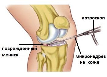 повреждения мениска коленного сустава